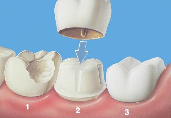 在银川牙齿损伤如何修复