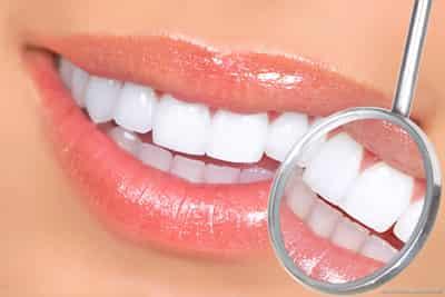 想要牙齿美白,银川艾齿医生告诉你方法