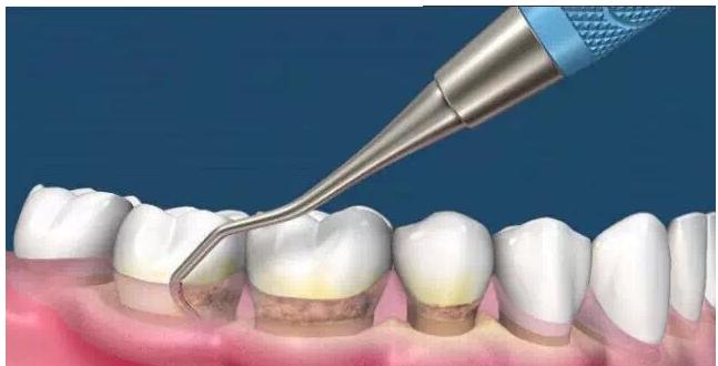 牙齿清洁,就选银川艾齿口腔医院