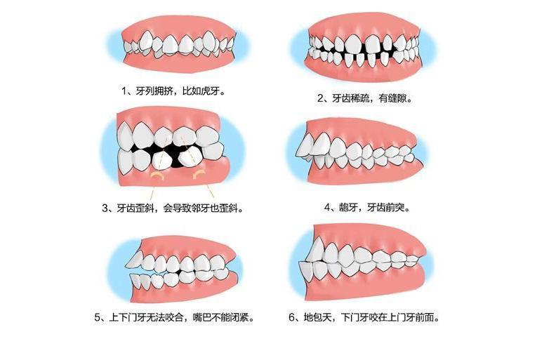 牙齿缺失找银川艾齿口腔