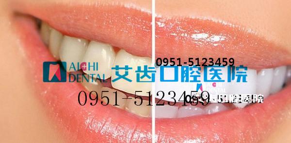 银川艾齿口腔数字化医院