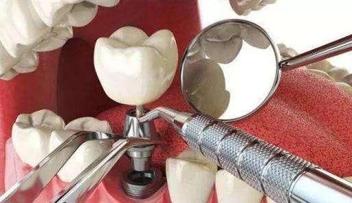 银川性价比最高的种植牙口腔医院在哪?
