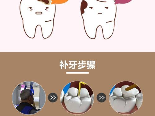 银川补牙就选艾齿口腔专科医院