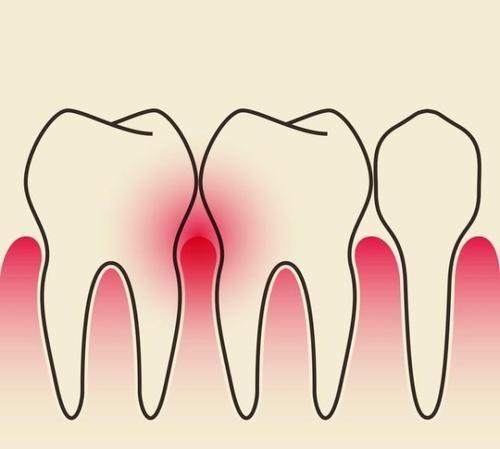 银川艾齿口腔医生告诉你,根尖炎与牙髓炎的区别