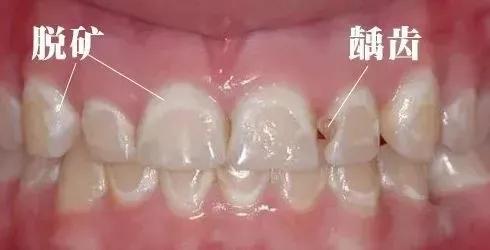 牙齿白斑3.webp