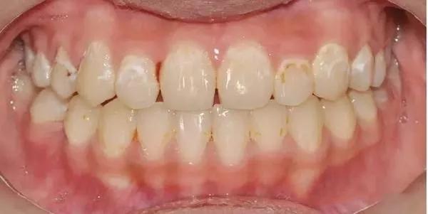 牙齿白斑.webp