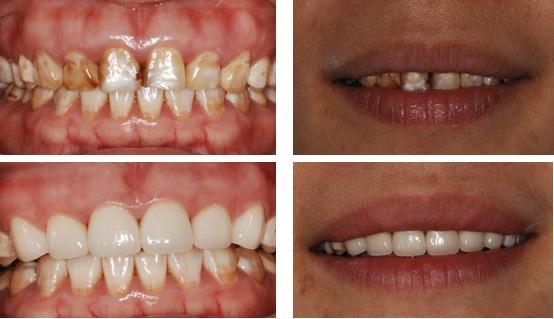 洗牙对比照片